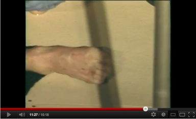 Ken Peters' right foot after attack, SeaWorld San Diego, November 29, 2006/Carlos Jimeno, youtube.com