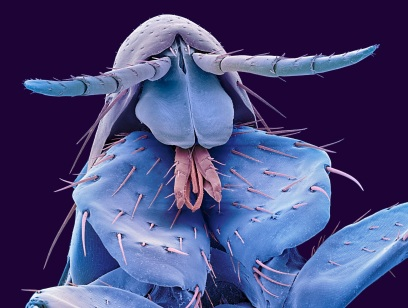 Human flea (Pulex irritans) / Science Photo Library, Getty Images, COSMOS / Click for more.