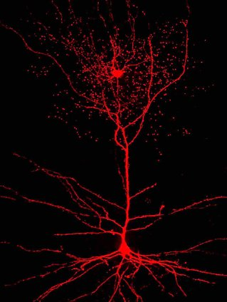 Rosehip neuron (top), connecting pyramidal cell (bottom) / Tamas Lab, U of Szeged, NPR / Click for more.